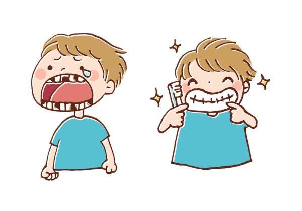 虫歯と歯磨き